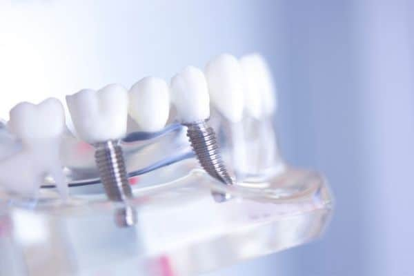 photo of a dental implant