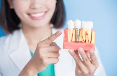 photo of a woman demonstrating a dental implant