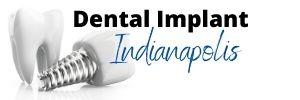 dental implant indianapolis logo